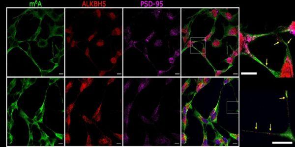 Επιστήμονες ανακάλυψαν νέα στοιχεία για τον τρόπο με τον οποίο επικοινωνούν τα εγκεφαλικά κύτταρα | Pancreta Ειδήσεις