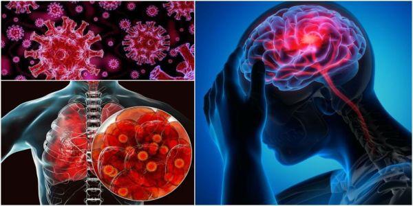 Οταν ο κορονοϊός εισβάλλει στον εγκέφαλό μας - Ειδήσεις Pancreta