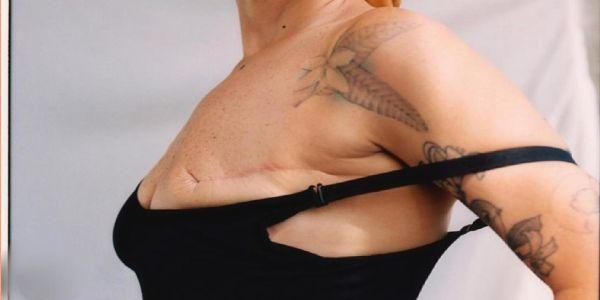 Μήνας πρόληψης για τον καρκίνο του μαστού – «Θα σ'το ζωγραφίσω, σιγά. Ένα βυζί είναι» - Ειδήσεις Pancreta